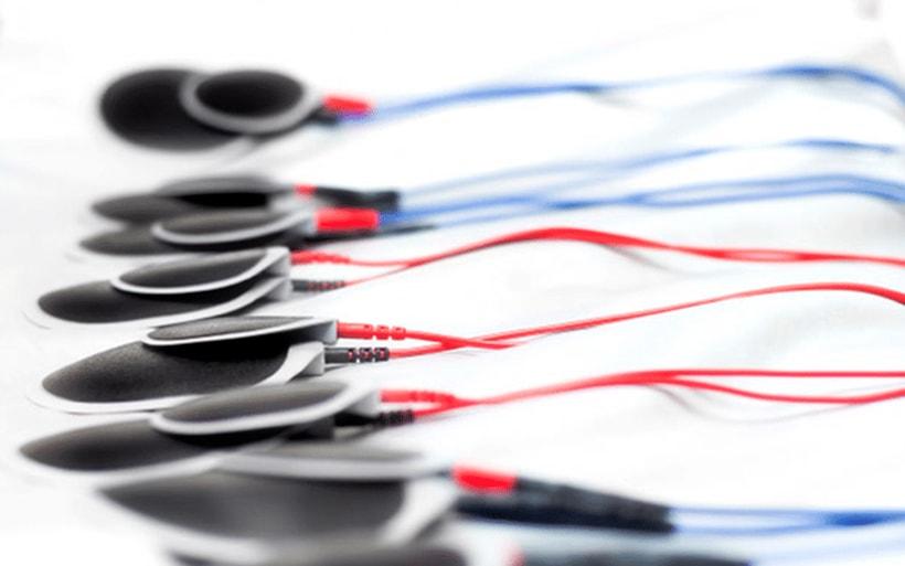 Electroestimulacion